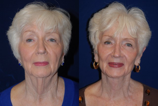 Direct Neck Lift | Tower Cosmetic Surgery
